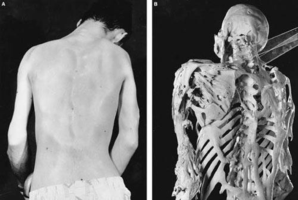 It is possible for a person's muscles to turn into bone