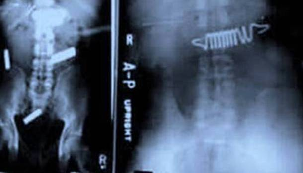 Battery Bedspring X-Ray