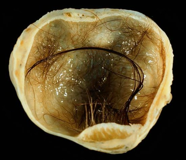 en.wikipedia.org Mature_cystic_teratoma_of_ovary