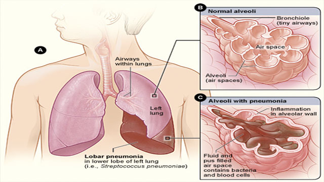 Other acute lower respiratory infections