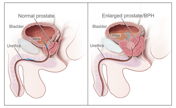 Prostate Only Causes Problems to Males