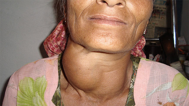 Being deficient in iodine can cause goiter (which is when your neck swells up). It can also cause stunted growth.