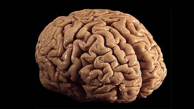 20% of the blood and oxygen in your body is used up by your brain