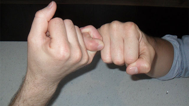 If you lost your pinky finger, you would lose about half of your grip strength