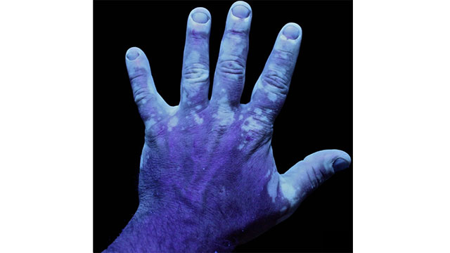 A condition known as methemoglobinemia caused by inbreeding resulted in the Fugates, a blue skinned family from Kentucky