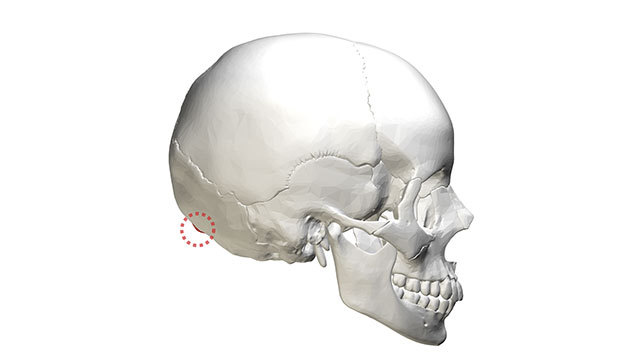 The external occipital protuberance (the bump on the back of your skull) is bigger in males than in females