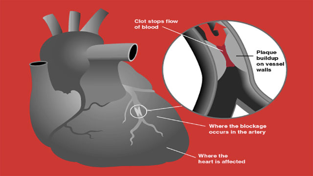 """During heart attacks, males experience the """"classic"""" symptoms like chest and jaw pain while for females the symptoms can be quite diverse. In fact, it can often be confused for heart burn."""