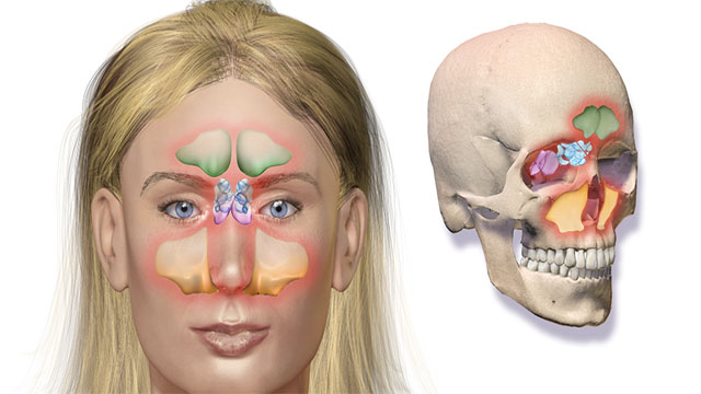 The top edge of the eye socket is much sharper in females than in males.