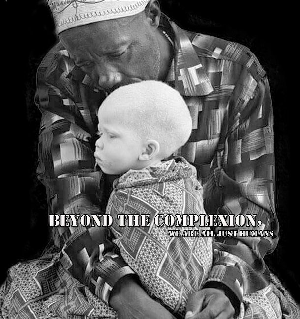 beyond the complexion albinism poster