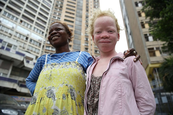 two girls - one with albinism