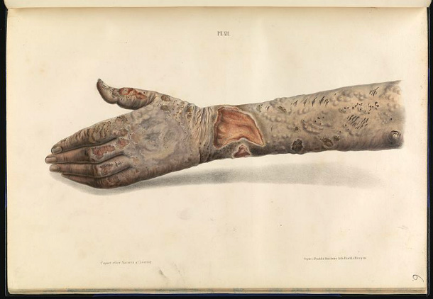 Tubercular_leprosy_on_the_hand_and_arm_Wellcome