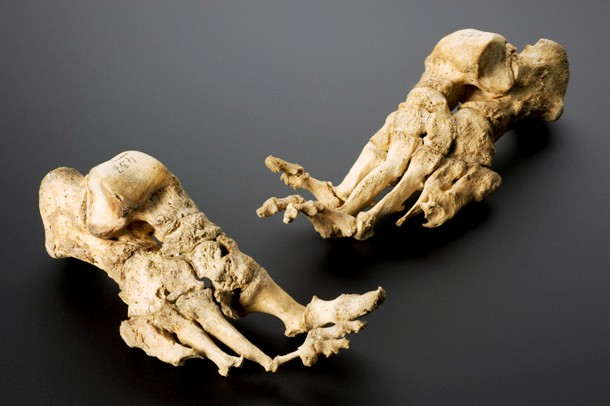 Skeleton showing effects of leprosy