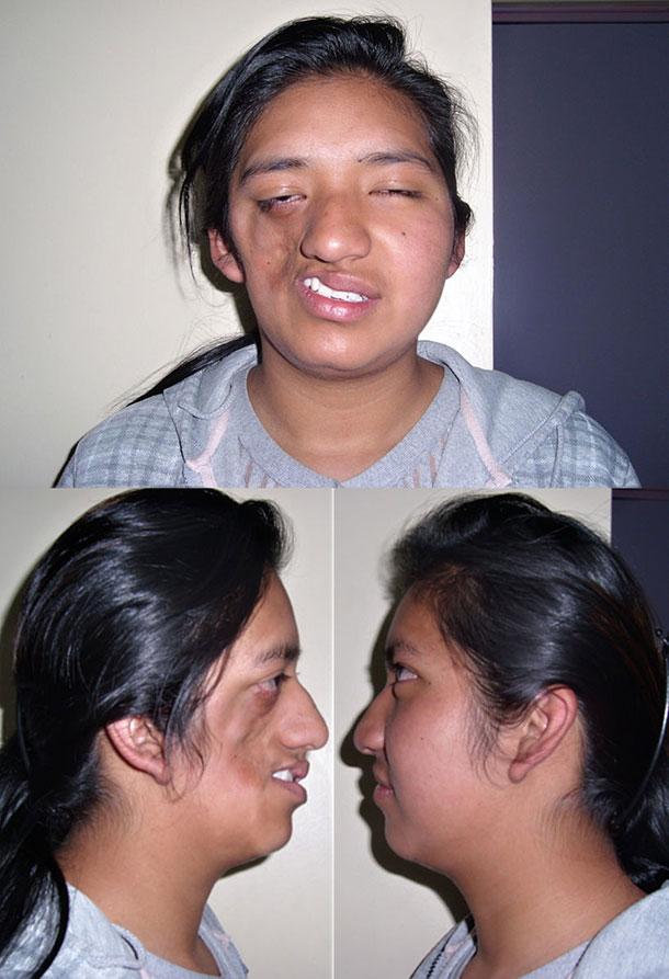 Parry_Romberg_Syndrome