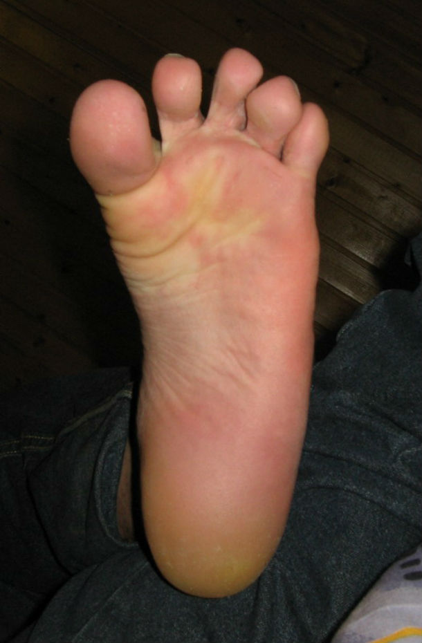 Sole_of_foot