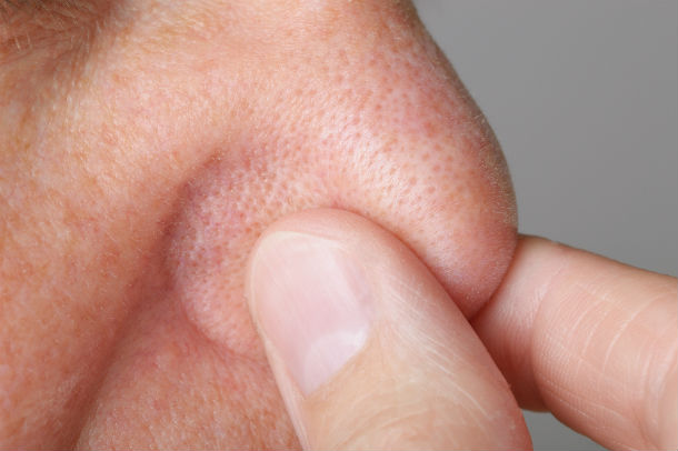 hold nose detail