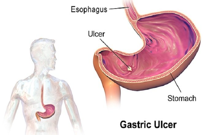 Gastric_Ulcer