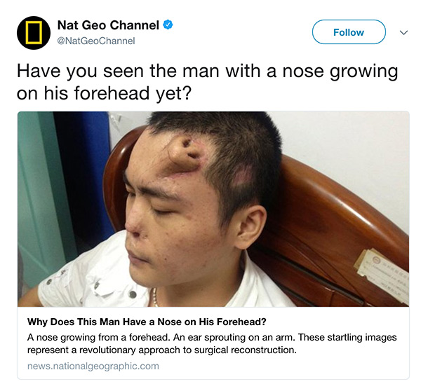 nose on head
