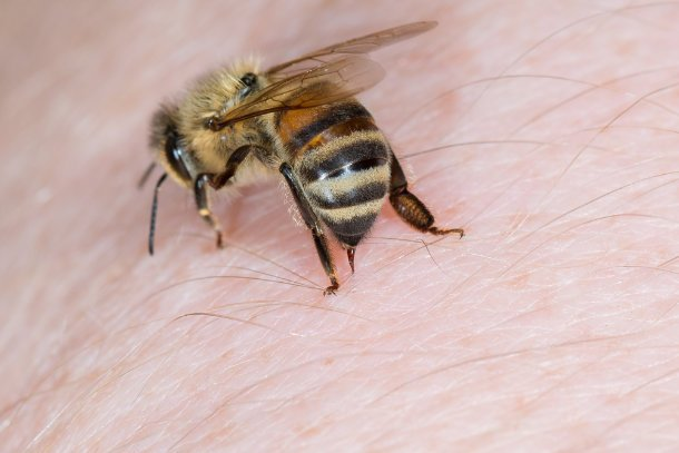close up bee stinging person
